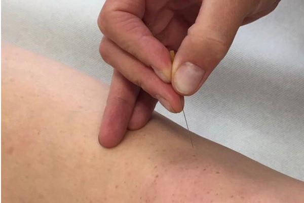 Akupunktur bei der Orthopädie Dr. Ziolko in Köln