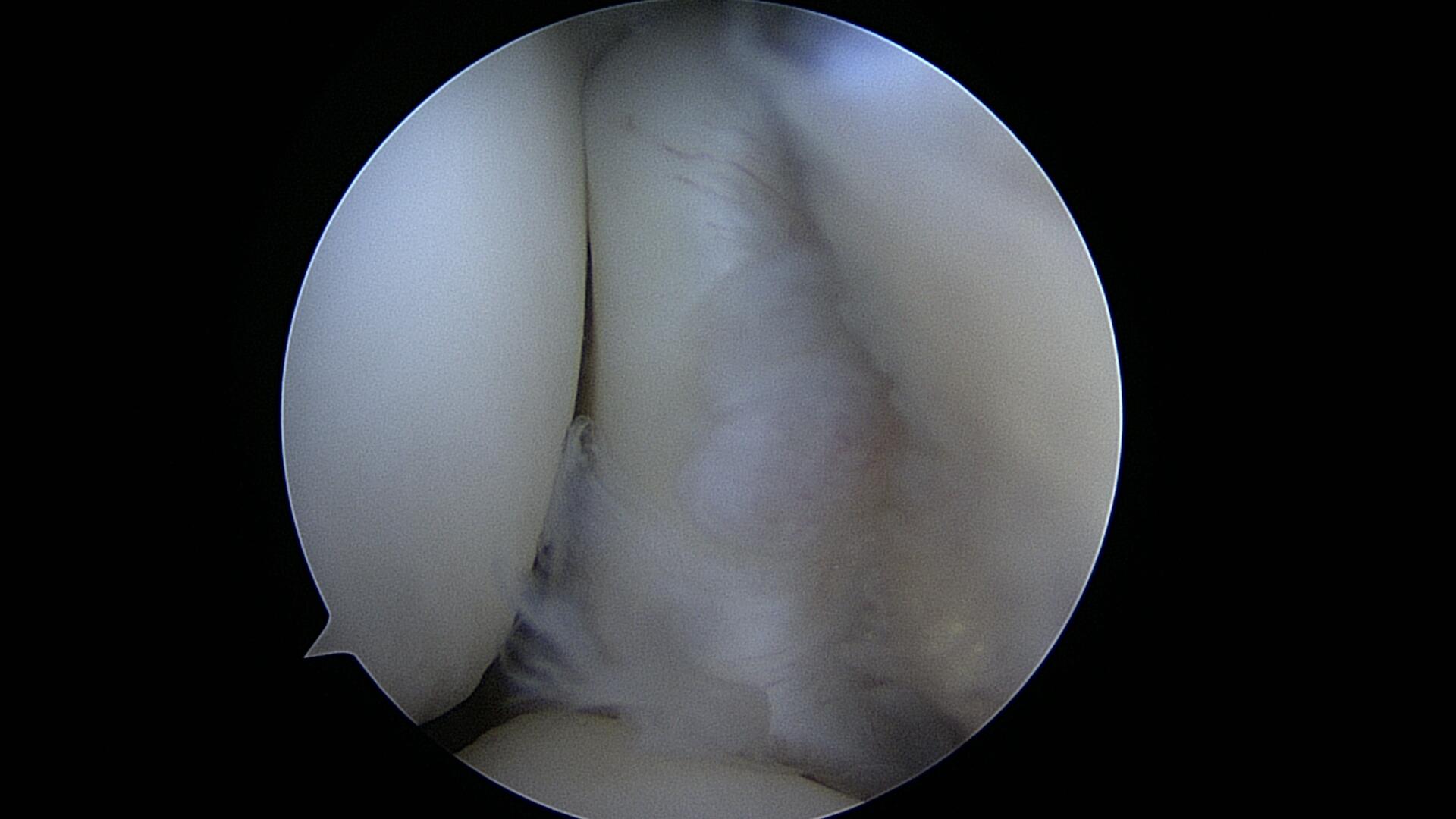 Bild einer Ellenbogen Arthrioskopie bei der Orthopädie Dr. Ziolko in Köln