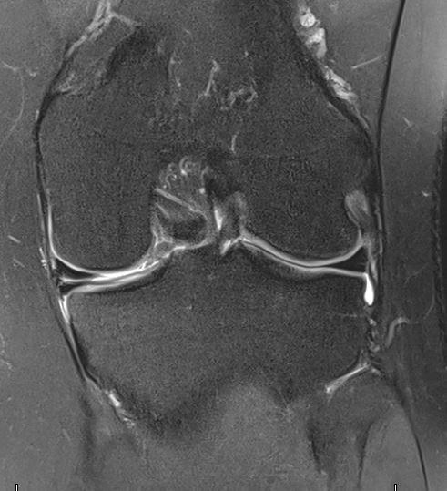 Röntgenbild eines Meniskusrisses bei der Orthopädie Dr. Ziolko in Köln