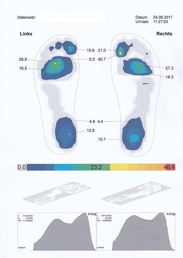 Visualisierung einer dynamischen Ganganalyse bei der Orthopädie Dr. Ziolko in Köln