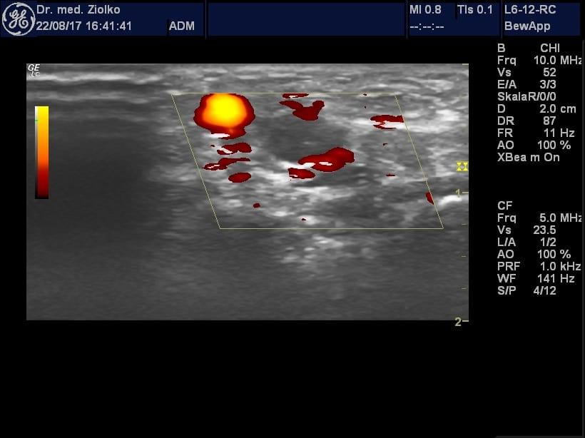 Ultraschallbild bei der Orthopädie Dr. Ziolko in Köln